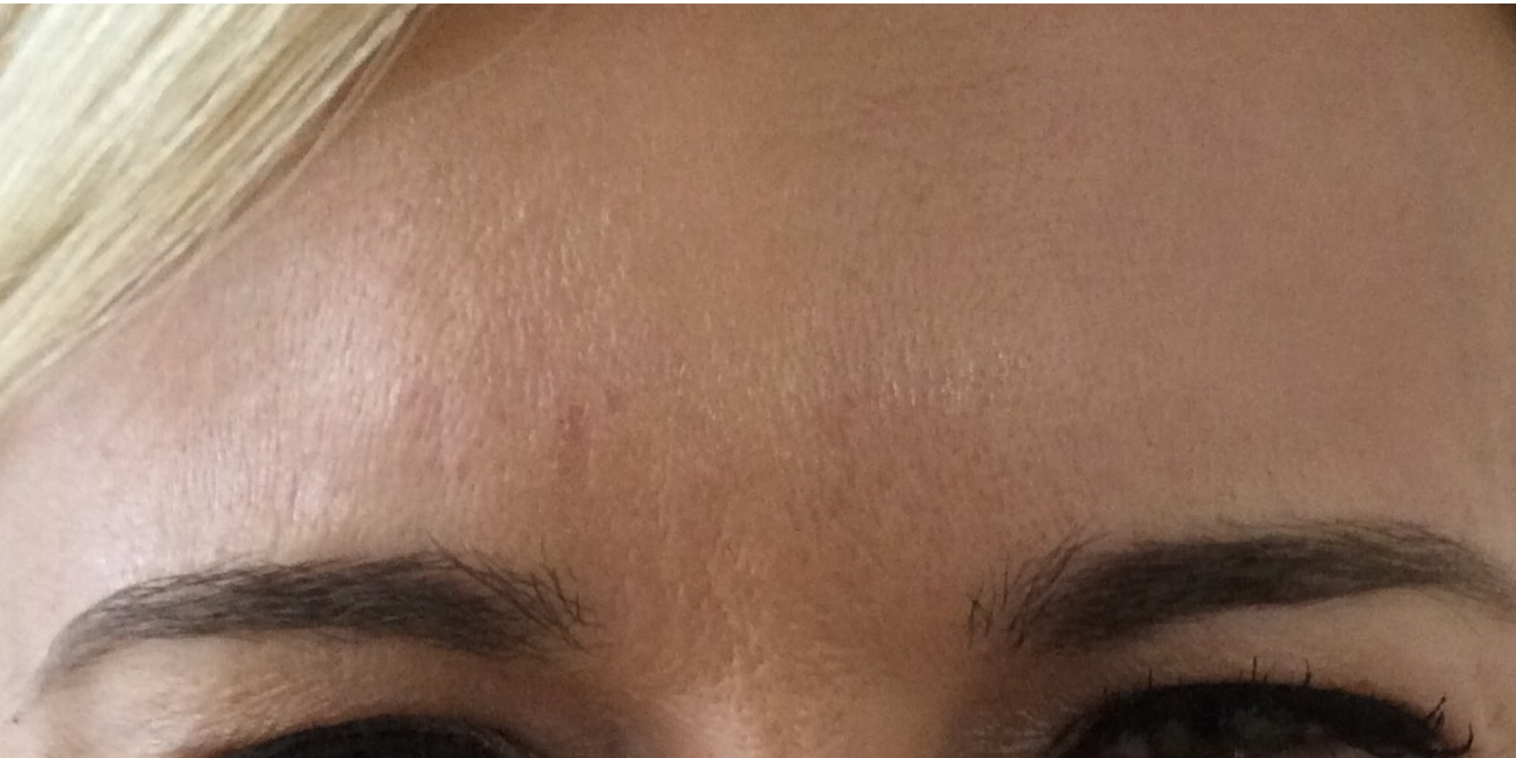 Brow lines after