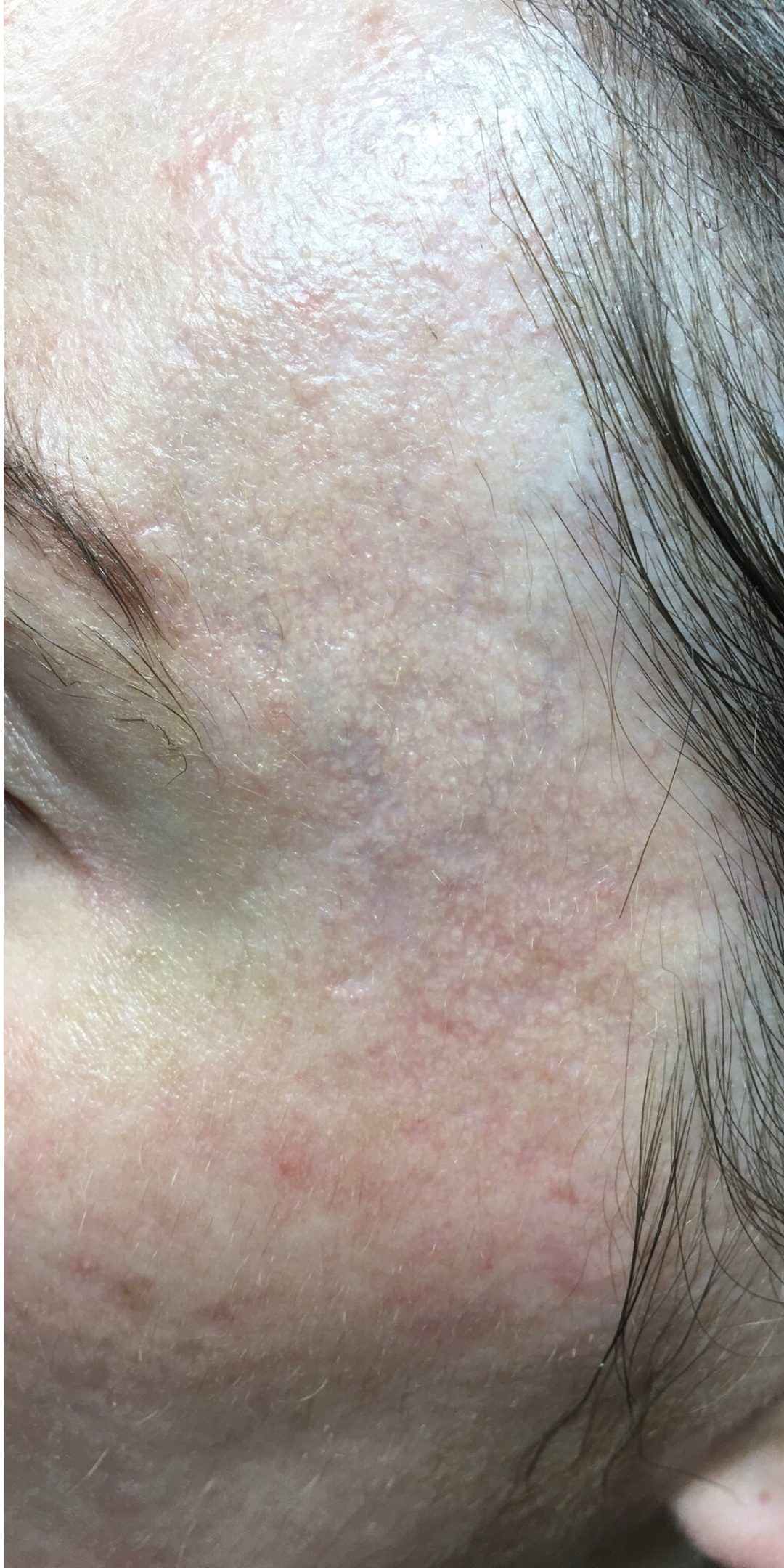 Skin boosters after