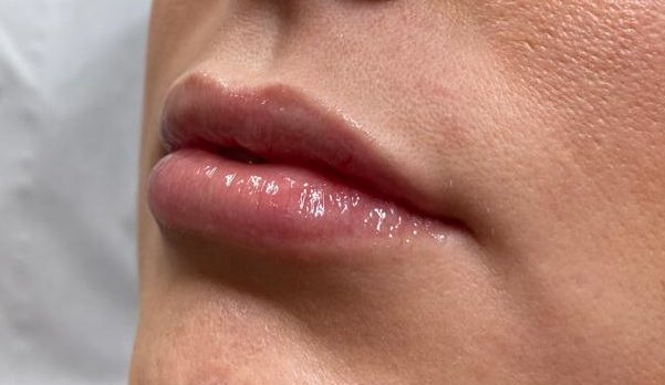 Lips Fillers and enhancement in London